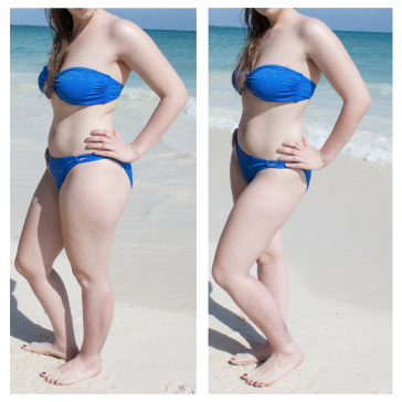 Two photos of a woman on the beach in a bikini. In this first image where her weight is on the foot closest to the camera, her thigh looks larger. In the second, where where weight is on the back foot, her thigh looks much slimmer.