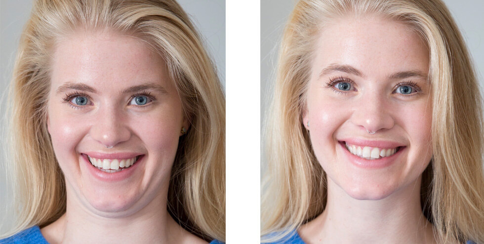 AVOID A DOUBLE CHIN IN PHOTOS: THE PEACH TECHNIQUE banner image